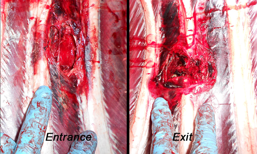 02 rib cage wound channel.jpg